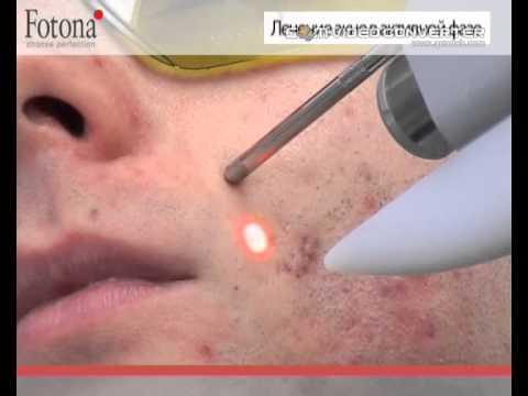 Что помогает от морщин на уголках глаз