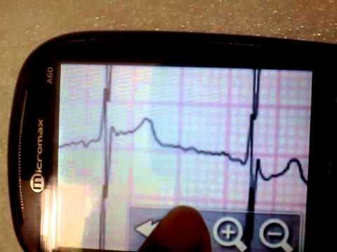 Video of eUno R10 Mobile Telecardiology