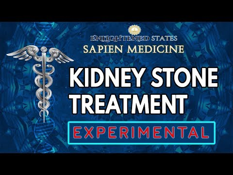 Video Experimental Kidney Stone treatment (to dissolve)