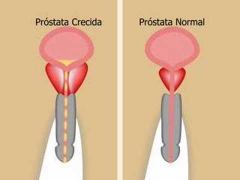 Kyst al Hindi ārstēšana prostatīta