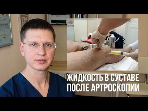 Почему собирается жидкость в коленном суставе после артроскопии?