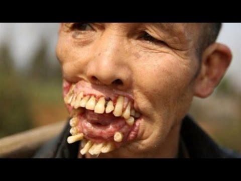 Saloobin Sytina laban parasites sa katawan ng tao