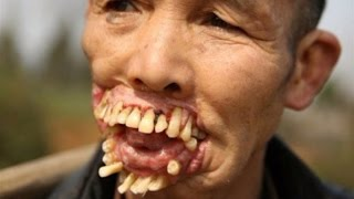 10 Scariest Diseases In The World