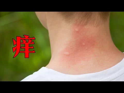被蚊子叮了應該如何止癢?