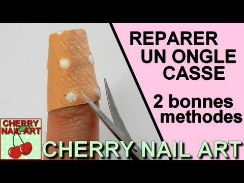 Dermatofity sur les ongles le traitement