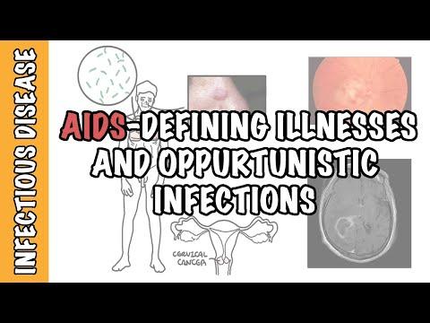 Infekcje oportunistyczne i choroby w przebiegu AIDS - komórki CD4+, złośliwość, leczenie