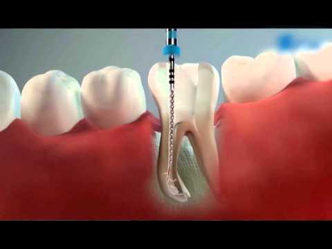 эндодонтия. лечение каналов зуба. гуттаперча. 3д- пломбирование.