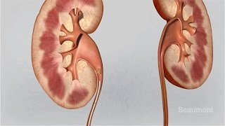 Kidney Stones Symptoms and Treatments