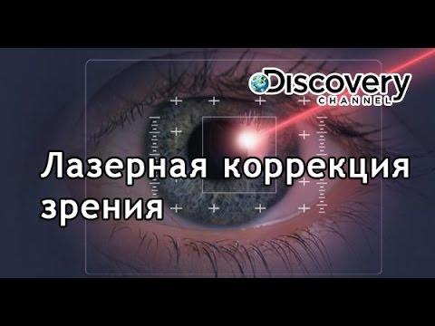 Кератотомия глазное давление