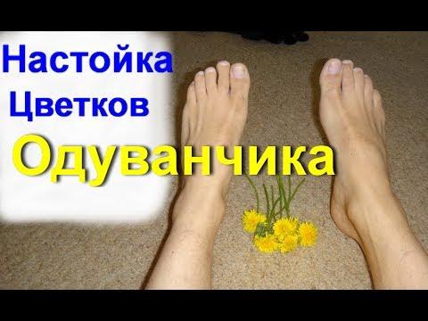 Настойка цветков Одуванчика. Ревматизм. Остеохондроз. Подагра. Артрит. Радикулит