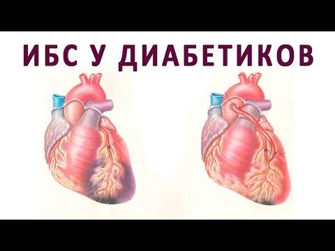Ишемическая болезнь сердца и инфаркт миокарда при сахарном диабете