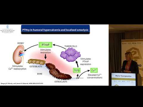 Yavropoulou Maria - Hypercalcemia of malignancy and new treatment options