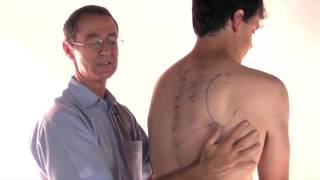Rhomboid Trigger Points - How to Stretch the Muscle