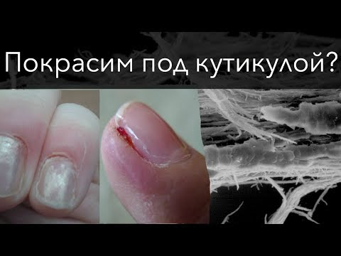 Опухают ноги при циррозе