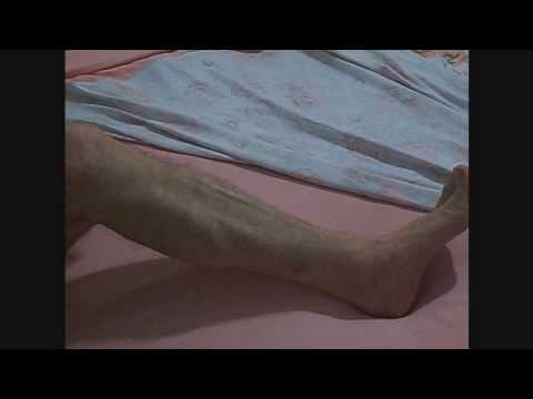 La varicosité entre les pieds chez les hommes