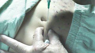 小女孩被囚禁16年,每天被养父注射药物,原来她根本不是人类!