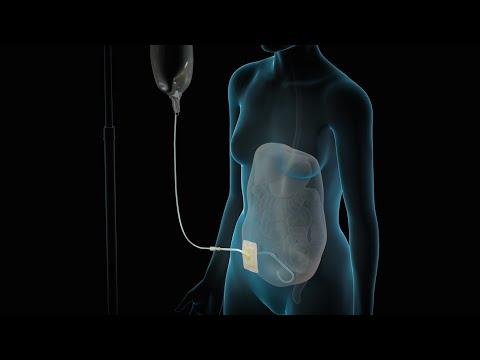 Medidores de presión sanguínea ICG procedimiento de calibración no invasiva