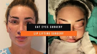 Cat Eyes  + Lip Lifting Operation / Before - After (Op. Dr. Yücel Sarıaltın)