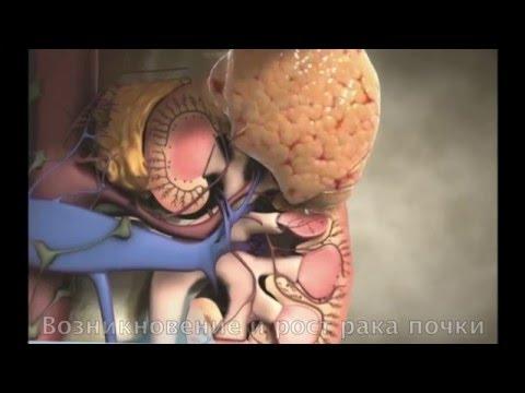 Онкология предстательной железы после операции