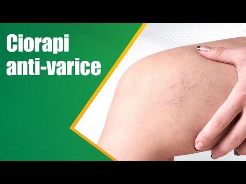 Cum să scoateți mâncărimea cu picior de varicoză