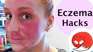 Eczema Hacks | Advice For Shitty Skin