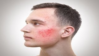 How to Get Rid of Pimple Redness Overnight.
