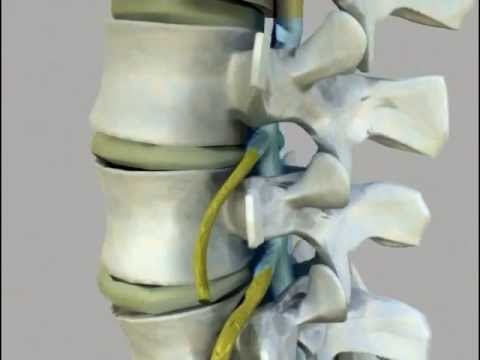 Video trattamento osteocondrosi cervicale