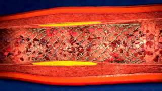 Como es la Angioplastia coronaria colocacion de stent