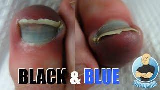 3 FOR 1 SPECIAL - INGROWN TOENAIL, BRUISED TOE, BLACK NAIL!!!