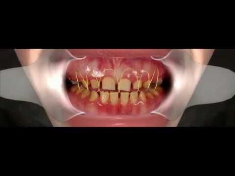 Эстетическая стоматология,