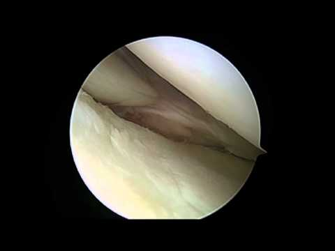 Arthroscopic ACL Repair