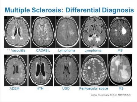Zastosowanie MRI w SM