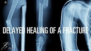 What can cause a fracture to have delayed healing?