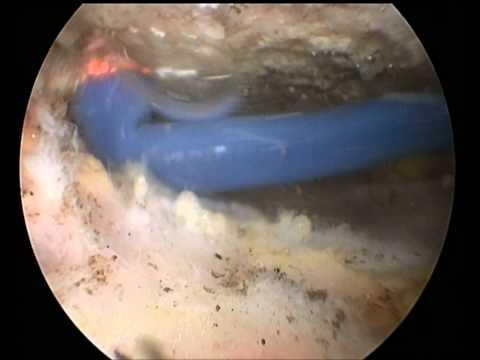Gefährlich, wenn Osteochondrose der Lendenwirbelsäule