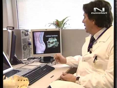 Osteoartrite del ginocchio lo stadio 2