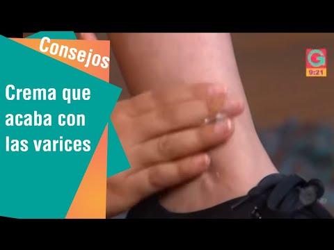 Pete maronii pe picioare de la varicoză