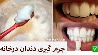 جرم گیری دندان در خانه در ۳ سوت