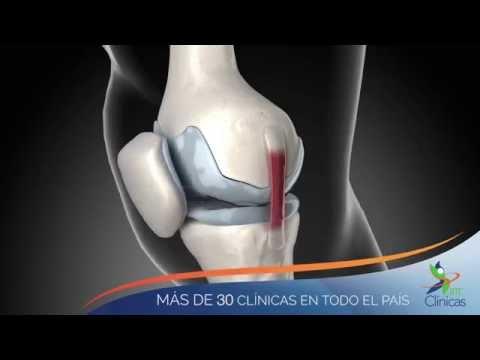 Malyshev tratamiento del dolor de espalda
