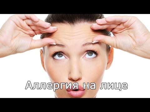 Как избавиться от пигментных пятен на лице перекисью водорода