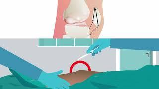 Reconstructive surgery is effective for recurrent kneecap dislocation