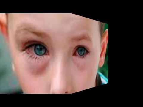 Упражнения от морщин и кожи вокруг глаз