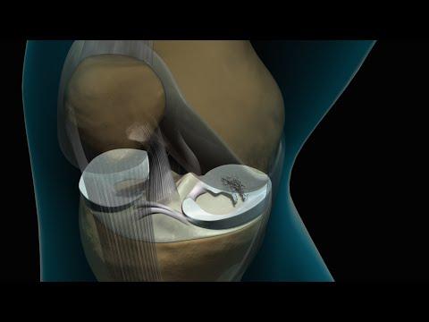 Fájdalomcsillapító kenőcsök a láb ízületeire