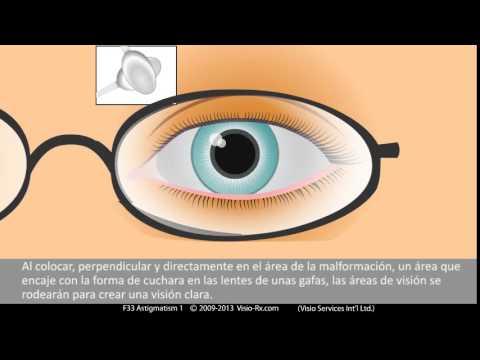 El cilindro en gafas graduadas. Corrección del Astigmatismo.