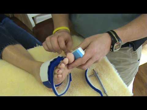Płasko-koślawe zniekształcenie stóp u dziecka 2 lata