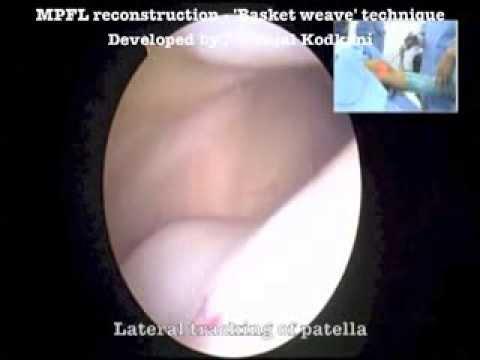 Patella dislocation - MPFL reconstrucion (Original technique)