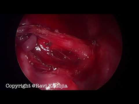 Extra Lobar Pulmonary Sequestration, Thoracoscopic Excision