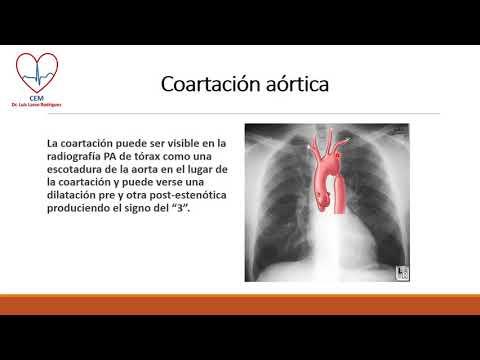 La principal causa de la hipertensión esencial