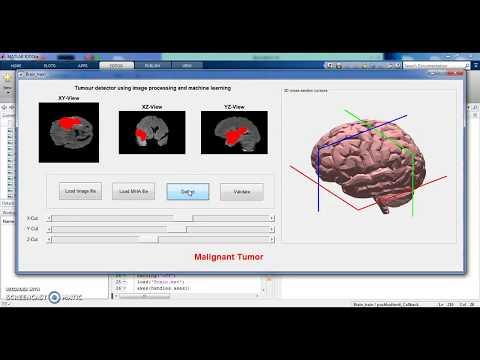 Wireless sensor network simulation with MATLAB – MatlabWorks