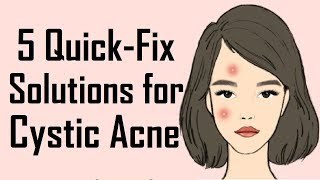 5 Remedies to get rid of Cystic Acne | How to get rid of Cystic Acne
