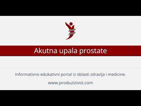 Il che significa prostata uniforme